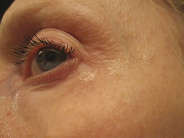 Before and After RevitalEyes Serum User Submission after