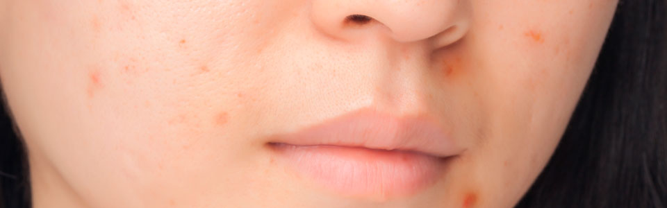 10 Common Causes Of Skin Discoloration - SymptomFindcom